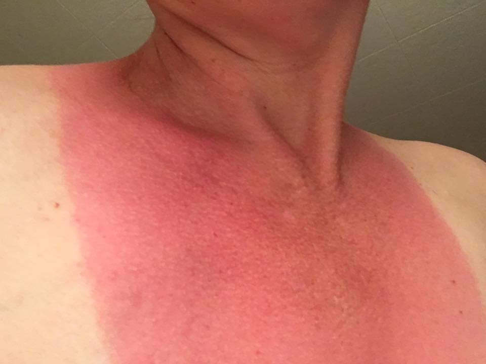 Women with severe sunburn tits pics